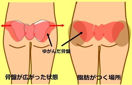 骨盤のゆがみ|骨盤が広がっている 下半身太りの原因