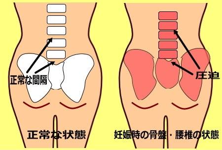 妊娠中の骨盤 妊娠中の腰の痛み 骨盤のゆがみ