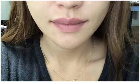 ID美容外科、輪郭整形、Vライン手術