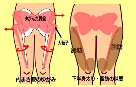 O脚のゆがみ|内巻き膝 大転子が出ている原因