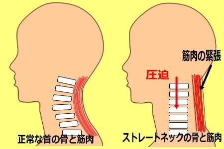 ストレートネック 首の痛みの原因