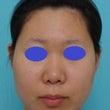 鼻中隔延長術(耳介軟…