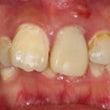 奥歯がなくなり出っ歯…