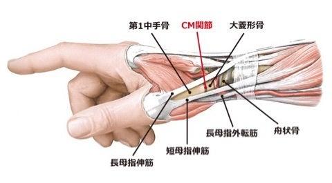 ちょこのブログ長母子伸筋腱断裂  示指伸筋腱移行術コメント