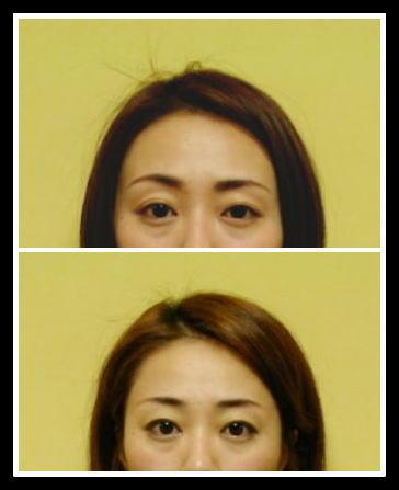 ビフォーアフター、小顔矯正、頬骨出てる、左右目の大きさが違う