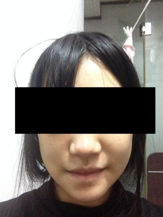 Eライン、両顎手術、Vライン形成