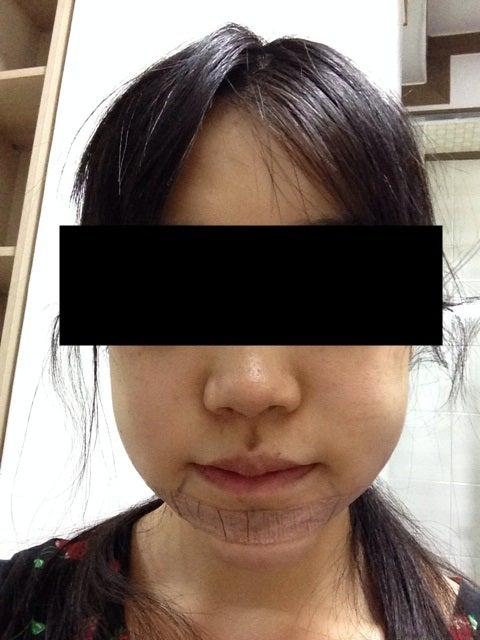 輪郭専門、韓国美容整形、しゃくれ顎
