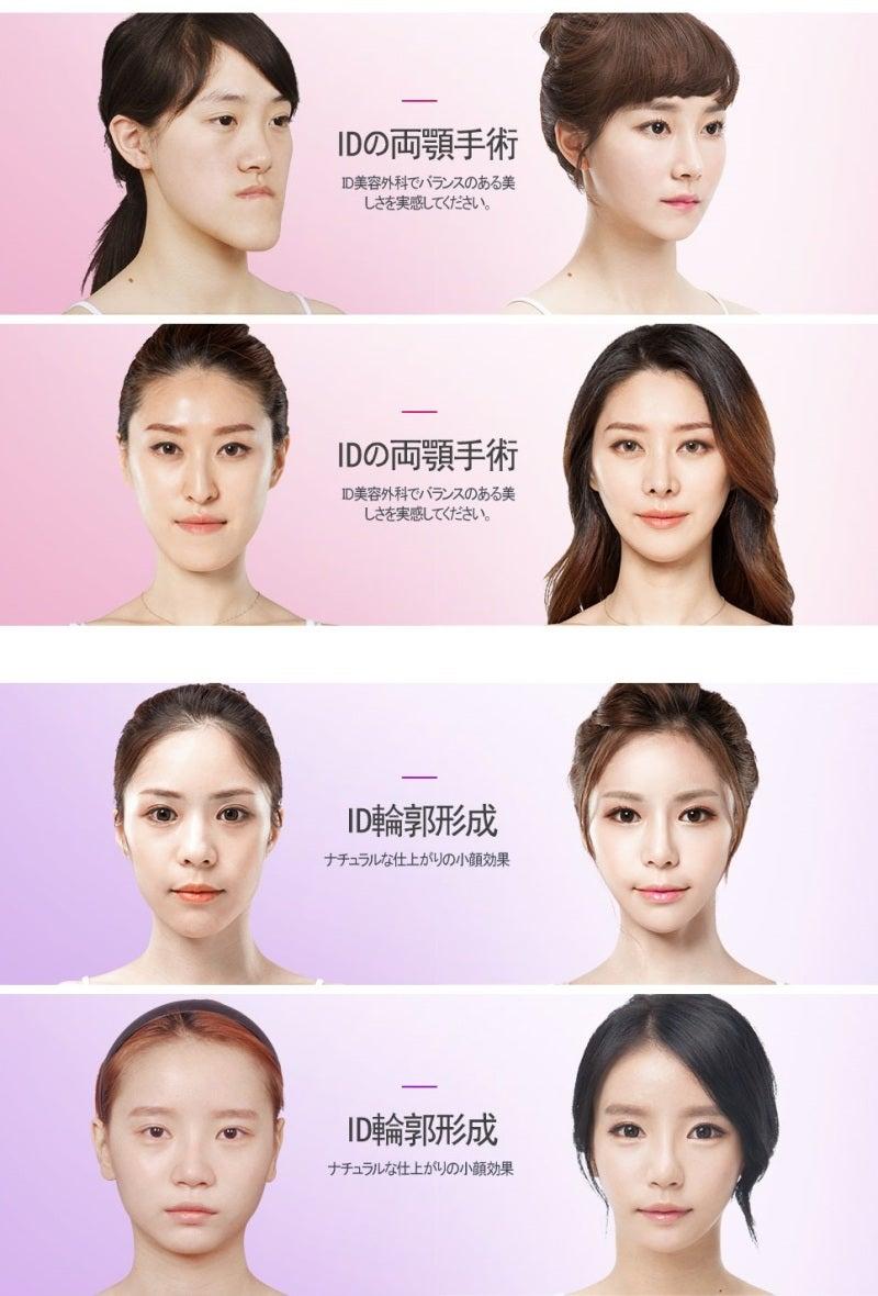 ID美容外科3