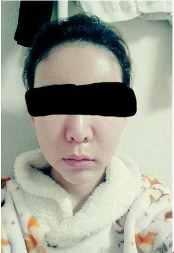 ID美容外科、輪郭、ルフォー、Eライン