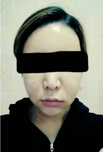 両顎手術、輪郭専門、ID美容外科、子顔