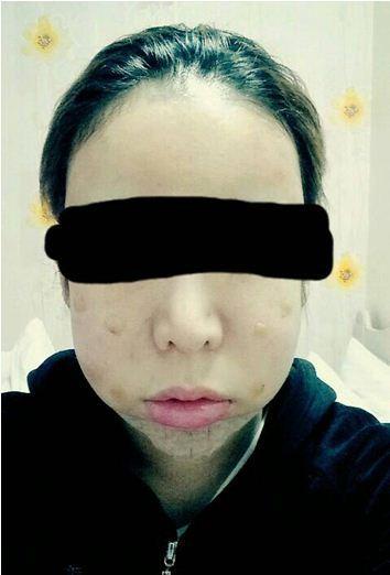 ID美容外科、輪郭専門、Vライン整形
