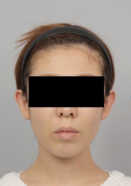 id美容外科、輪郭専門、豊胸術