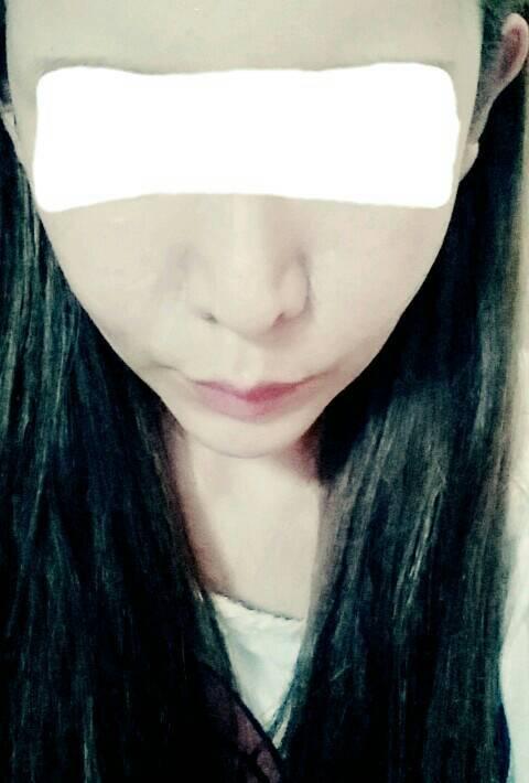 輪郭手術、症例写真、韓国美容整形、ID美容外科
