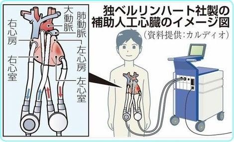 補助人工心臓の使用