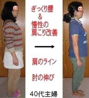 ぎっくり腰と慢性の肩こり改善