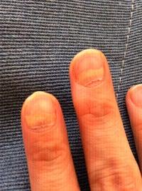 手足口病の後遺症