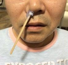 美容室WOOP:通販:鼻毛のワックス脱毛