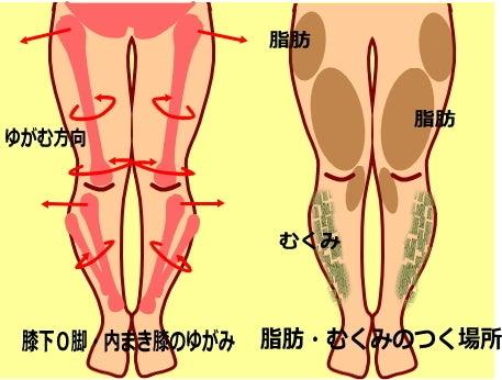 画像 膝下O脚のゆがみ 内巻き膝・膝下の骨のゆがみ