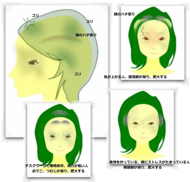 ハチ張りなおす 側頭筋のコリ 原因と頭皮マッサージ やり方