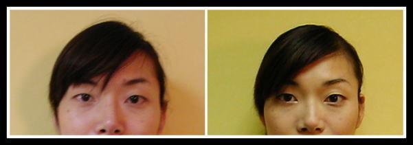 ビフォーアフター、小顔矯正、顔の歪み、目の大きさ違う