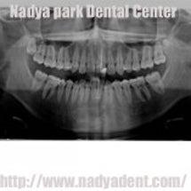 虫歯部分を白いセラミ…