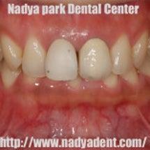 前歯2本のセラミック…