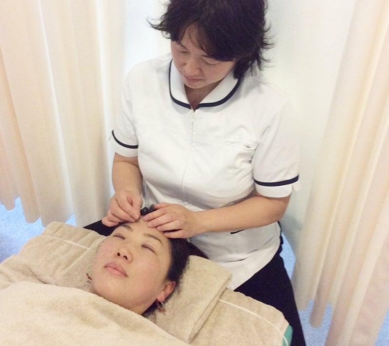 副鼻腔炎改善の鍼灸治療中の写真
