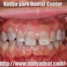 前歯の審美治療&矯正…