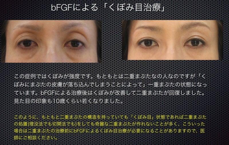 くぼみ目治療