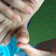 魚の目が親指と小指の…