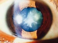 手術前の私の目の白内障
