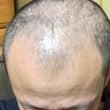 育毛開始から4か月、…