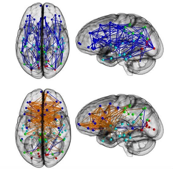 男女脳回路図