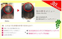 髪の増毛30%オフ