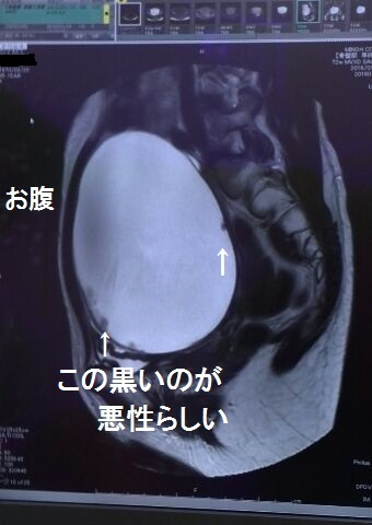 卵巣 嚢腫 再発 【卵巣嚢腫】再発したお話|ディンギル|note