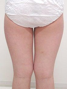 一日脂肪取りスリムプログラム太もも施術後