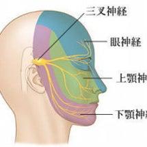 三叉神経痛 鍼とホッ…
