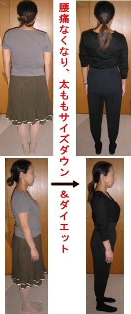 西東京市ひばりヶ丘駅の整体の腰痛が無くなり、太ももサイズダウンでダイエット