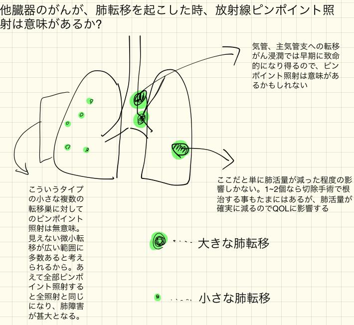 肺転移へのピンポイント照射