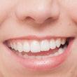 審美歯科治療について