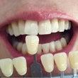 歯のホームホワイトニ…