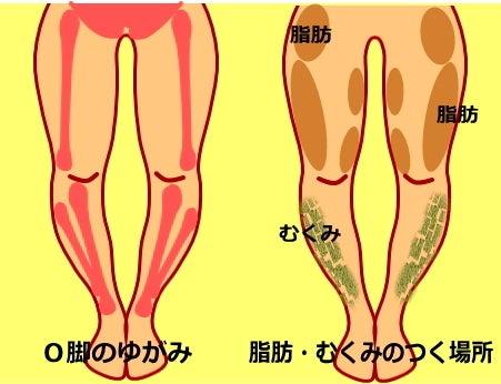 O脚の治し方 O脚・股関節矯正ストレッチ