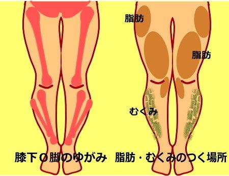 膝下O脚(XO脚)のゆがみ 筋肉 脂肪 むくみの原因