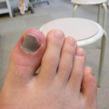 右母趾末節骨骨折疑い