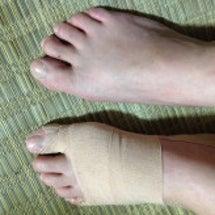 足の不具合2(外反母…