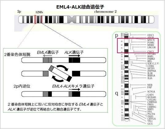 2番染色体のEML4-ALK融合遺伝子
