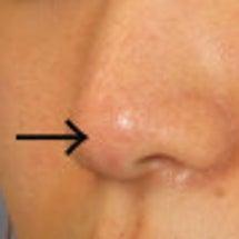 鼻先の手術で皮膚が薄…