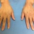 手の甲の浮き出た血管…