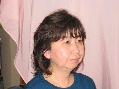 久美子師術後右横