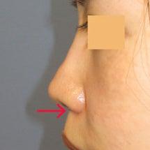 鼻尖部の異物を摘出:…